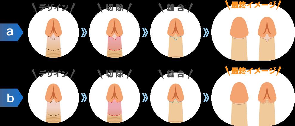 仮性包茎 手術 費用