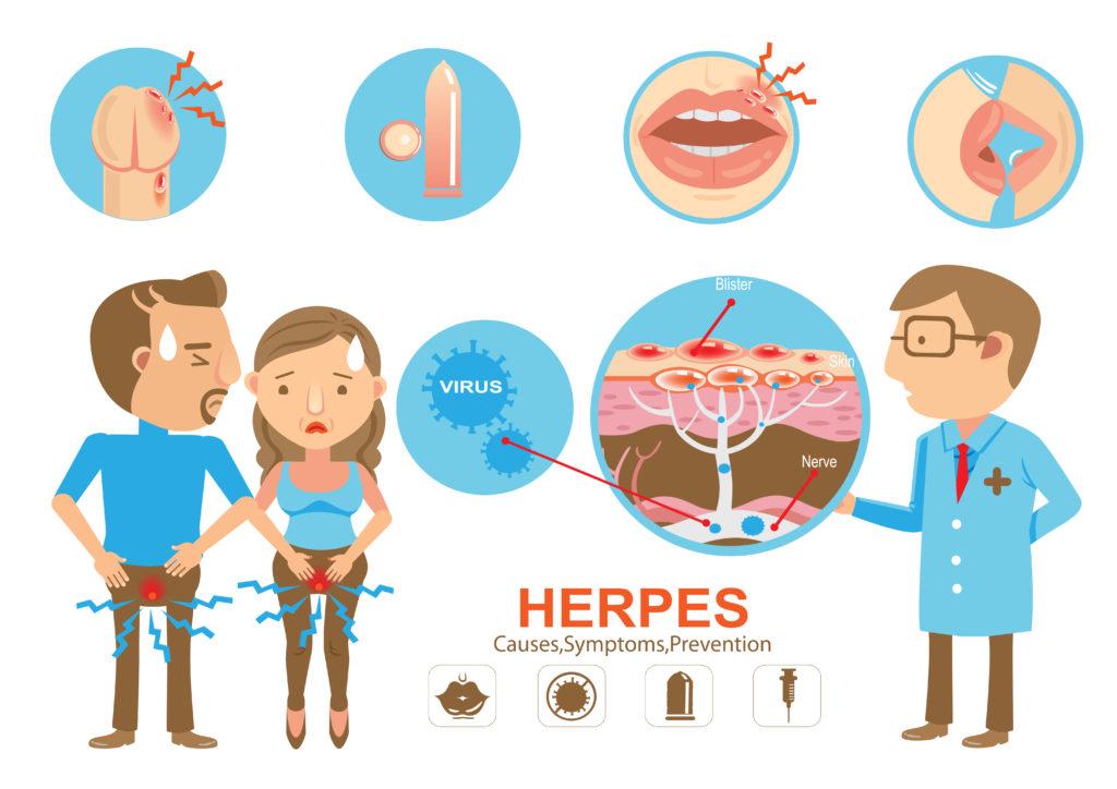 精 器 ヘルペス 男性 早く 治す