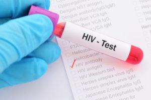 エイズ検査は信頼できる医療機関で