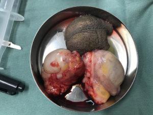 睾丸摘出、陰嚢切除